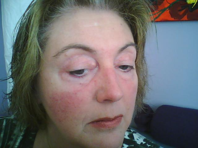 gevoelige huid dagcreme